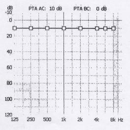 Audiometria dopo ossigenoterapia iperbarica